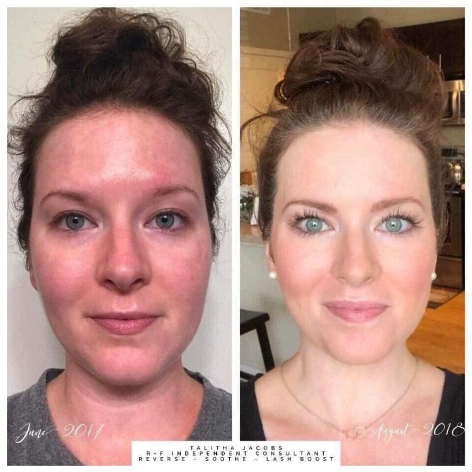 R F Skincare Rodan Fields Skin Care Even Skin Tone Rodan And Fields