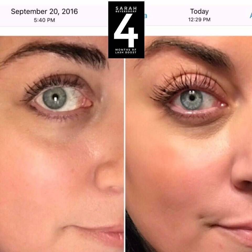 """What if you could have lashes like this that are ALL YOURS?! You can! NOT A MASCARA!  Want it with a FREE product! Comment """"how"""" below! #lashes #goals #lashboost"""