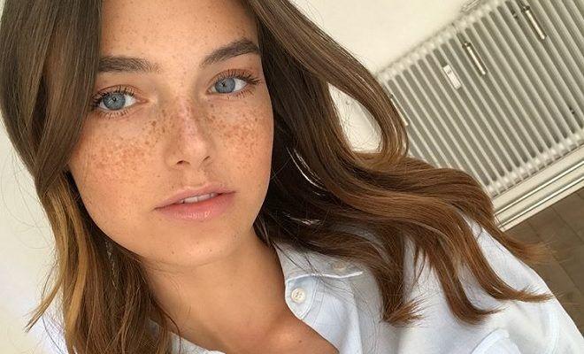 celine | Beautiful freckles, Amazing face, Most beautiful