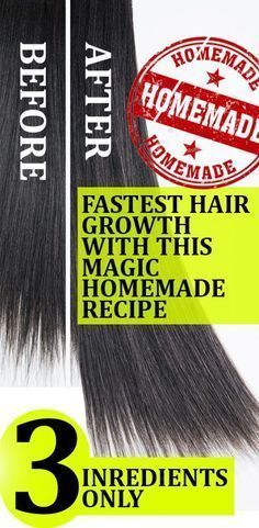The Magic Homemade Recipe For Fastest Hair Growth 3 Ings Only