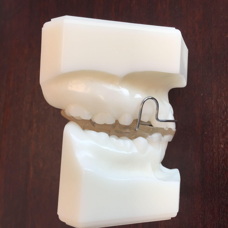 Pin By Gorczyca Orthodontics On Orthodontic Retainers