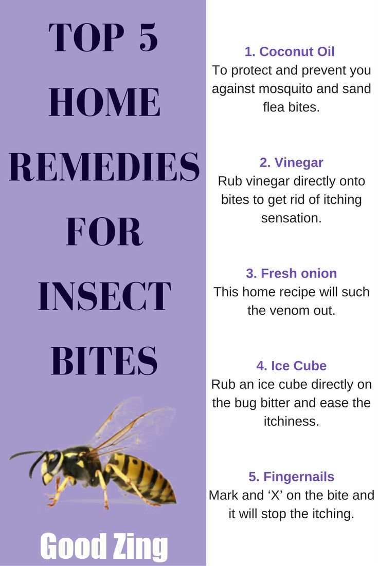 Fine All The Best Bee And Wasp Sting Remedy For You Home Interior Design Ideas Tzicisoteloinfo