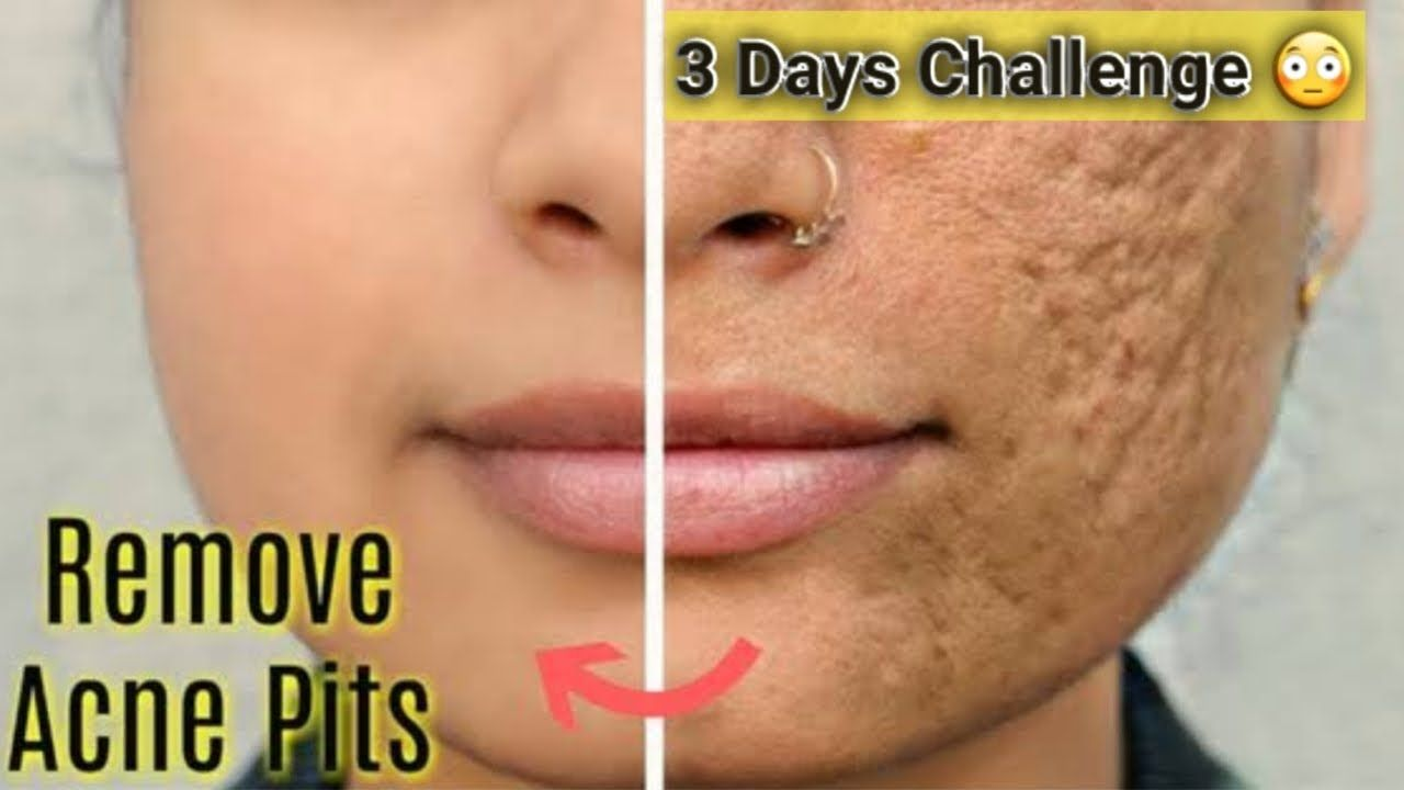How To Remove Face Pits Open Pores Permanently With This Magical Solution Remove Acne Acne Skin Natural Acne Remedies
