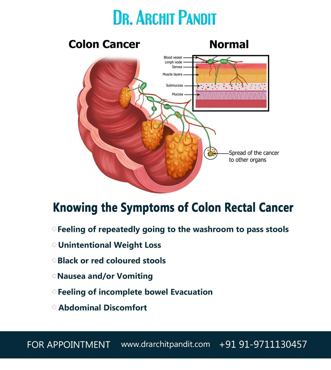 Marvelous Pin On Colorectal Cancer Alphanode Cool Chair Designs And Ideas Alphanodeonline