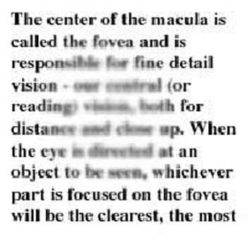 Age Related Macular Degeneration   Bright Vision Optometry   Chino     macular degeneration risk factors