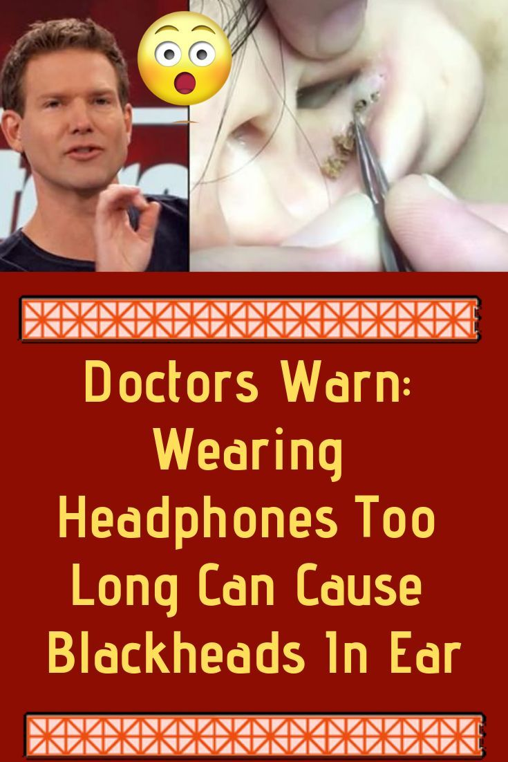 Doctors warn wearing headphones too long can cause