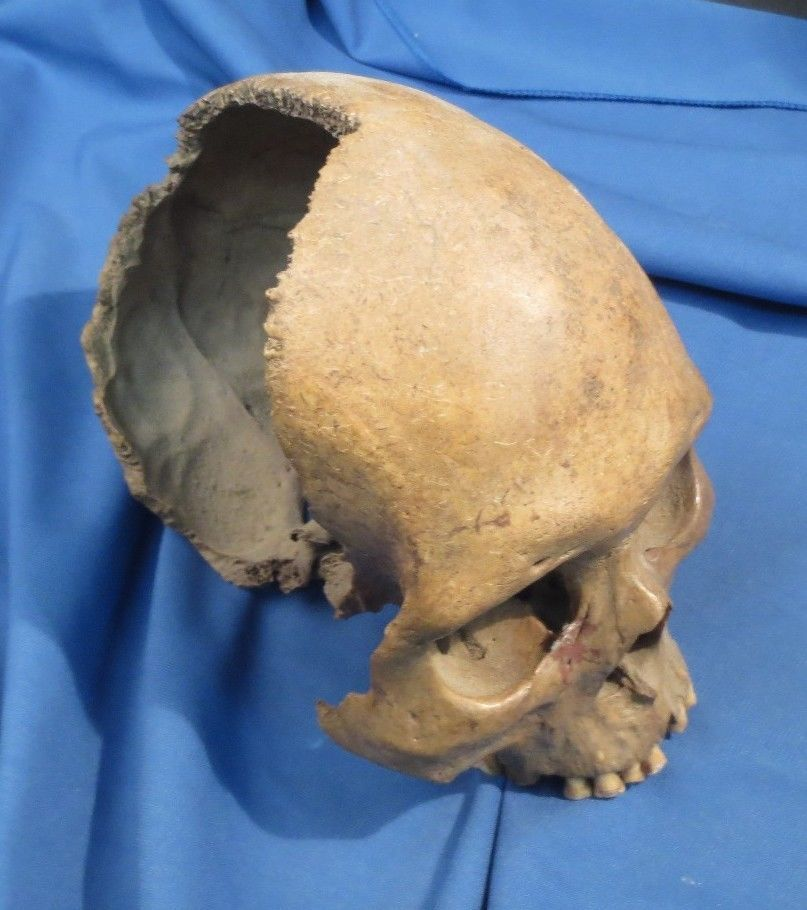 Amazing real human skull articulated for medical study