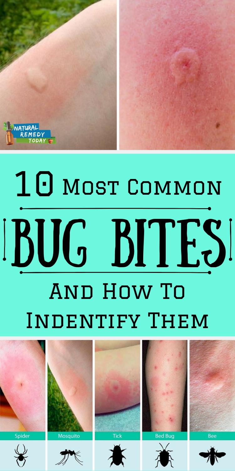 10 Most Common Bug Bites And How To Identify Them Bug Bites