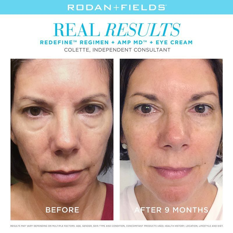 b55c39ed360 For skin that's noticeably smoother and firmer, our best-selling Redefine  regimen is the