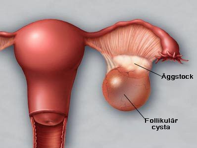 tumör på äggstocken