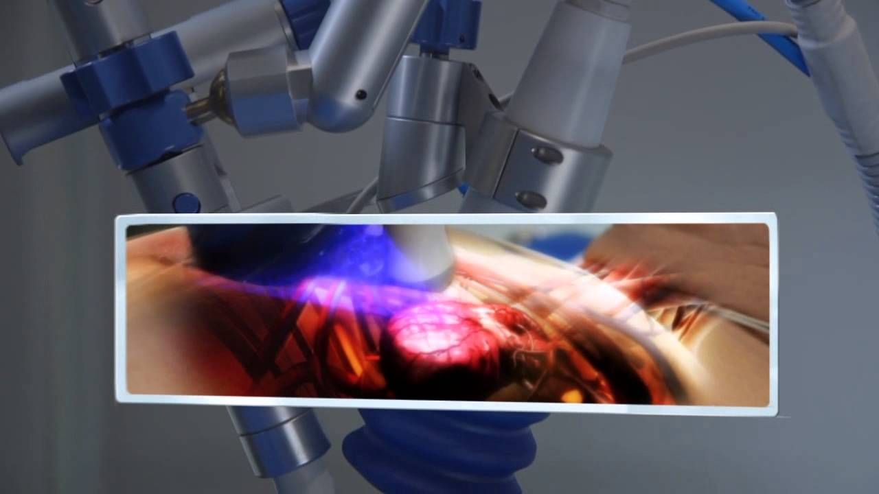 The United States Myocardial Revascularization Repair And