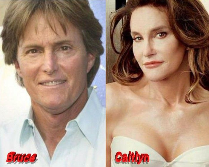 Bruce Jenner Before After Transition