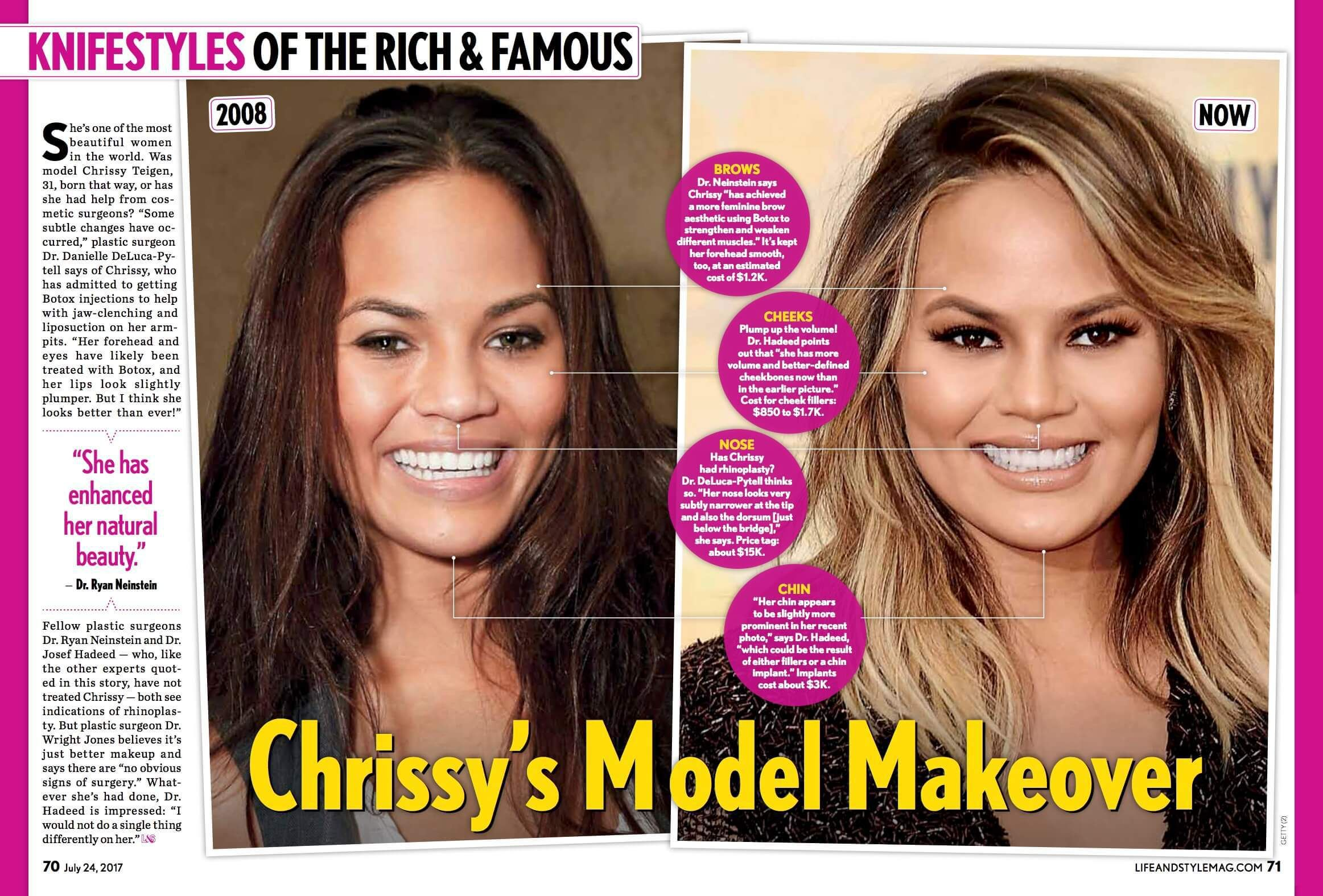 Image Result For Chrissy Teigen Before And After Plastic Surgery