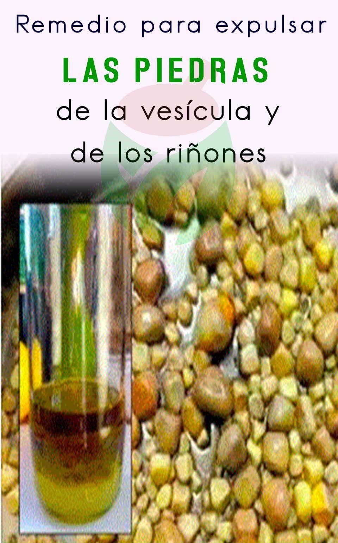 remedios caseros para eliminar las piedras en la vesicula biliar