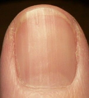 Vitamin B12 and Fingernails | Health Boundaries | Health ...