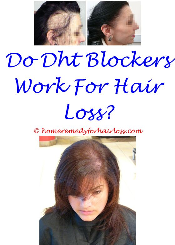 remedies to prevent hair loss - scalp tingles hair loss.histogen ...