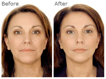 *How to Get Rid of Wrinkles No Surgery Solution* http