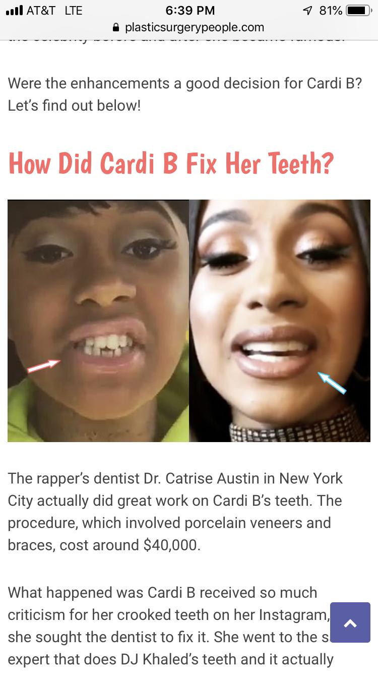 Cardi B Teeth Before And After : cardi, teeth, before, after, Prncessliz, BEAUTY, Dentist,, Enhancement,, Porcelain, Veneers