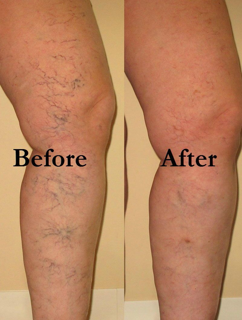We remove the spider veins on the legs