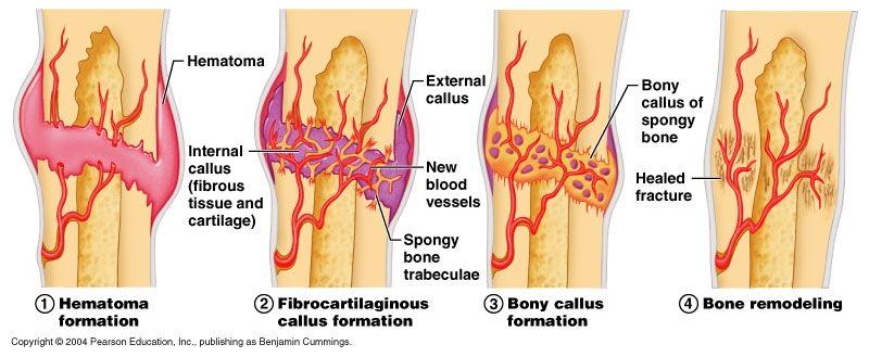 Speed Healing Of Bone Fracture Fracture Healing Bone Healing Bone Fracture