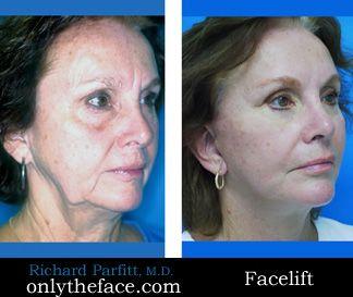 Facelift by Dr. Richard Parfitt
