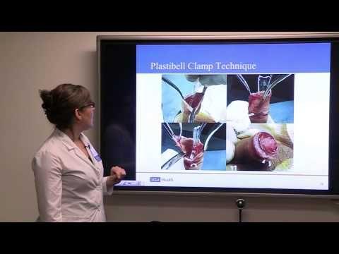 Circumcision - Indications, Controversies, Complications