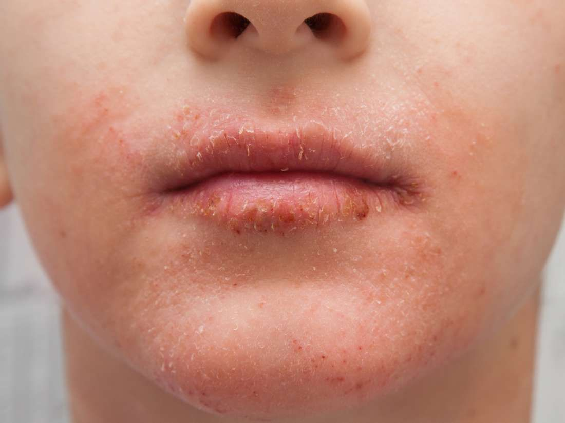 The Skin Around The Mouth May Become Dry Because Of Allergies