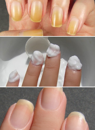 How To Cure Yellow Toenails From Nail Polish