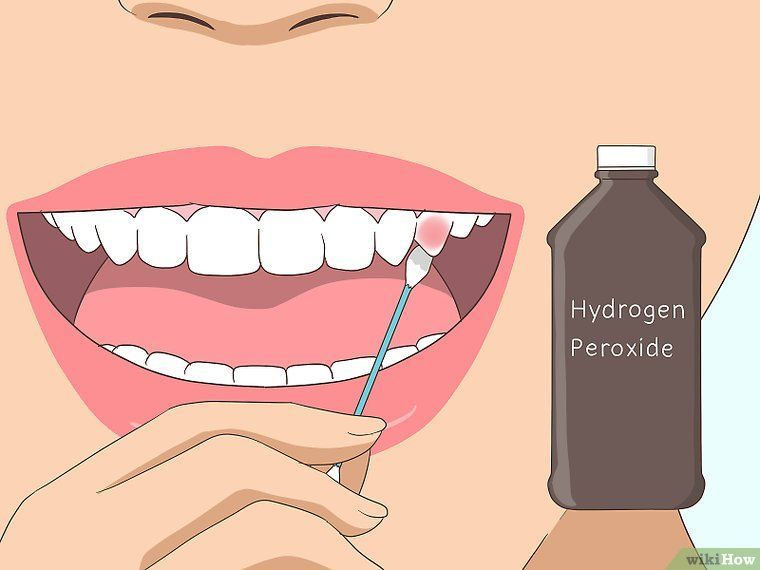 Pin on emergency dentist home remedies