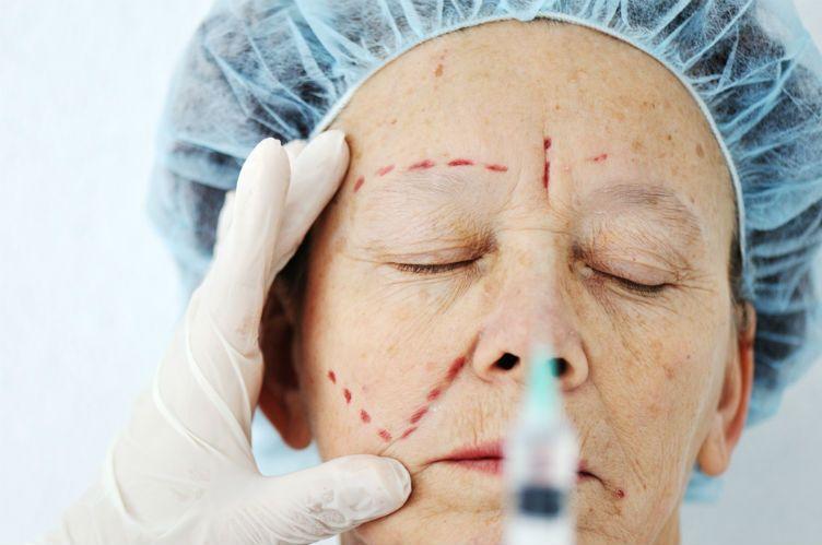 As cirurgias plásticas mais pedidas após os 60 anos