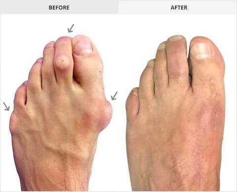 40+ Toe corrector before and after ideas