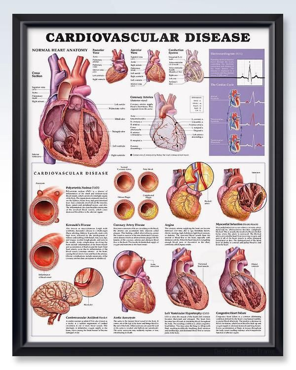 Cardiovascular Disease 20x26 Anatomy Poster Products Pinterest