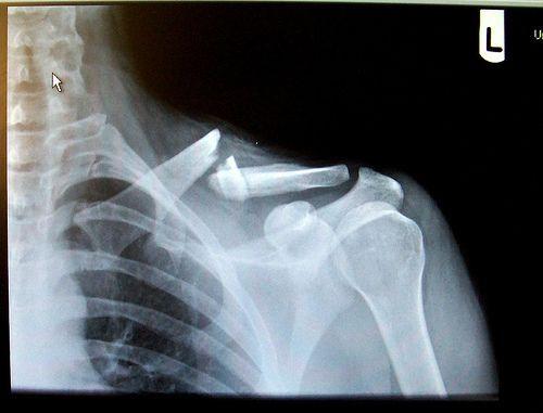 x-rays of broken bones | 20090323 brokenclav Lance Armstrongs Broken