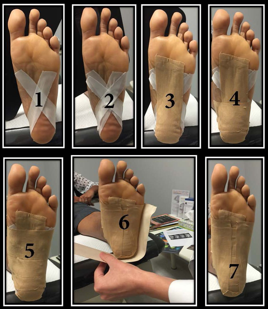 Easy strapping for Plantar Fasciitis
