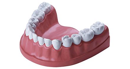 Zahnzusatzversicherung Dfv Zahnschutz Mit Bildern Zahnzusatzversicherung Zahnbehandlung Zahne