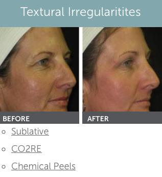 Are Facial rejuvenation wyoming