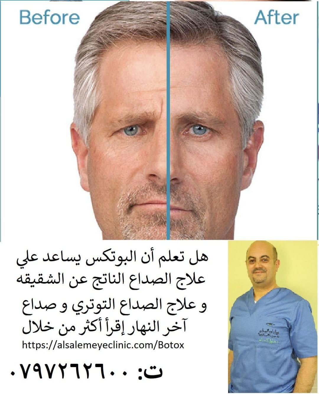 Khalil Alsalem Posted To Instagram البوتكس علاج فعال للصداع النصفي و الشقيقة أو الصداع الذي ينتج من الإجهاد في آخر النهار الفكرة تقوم علي شل العضلات ال Botox