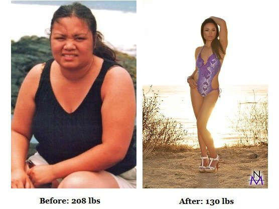 Best weight loss treatment in pune photo 9