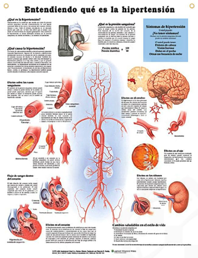 Hypertension Entendiendo Que Es La Hipertension Anatomy Poster