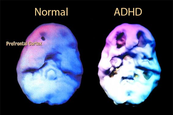 Pin On About Adhd