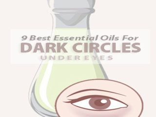 How To Remove Dark Circles In 2 Days Naturally? in 2020 ...