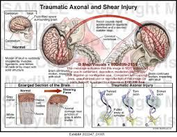 Image result for Diffuse Axonal Injury | Injury, Brain ...