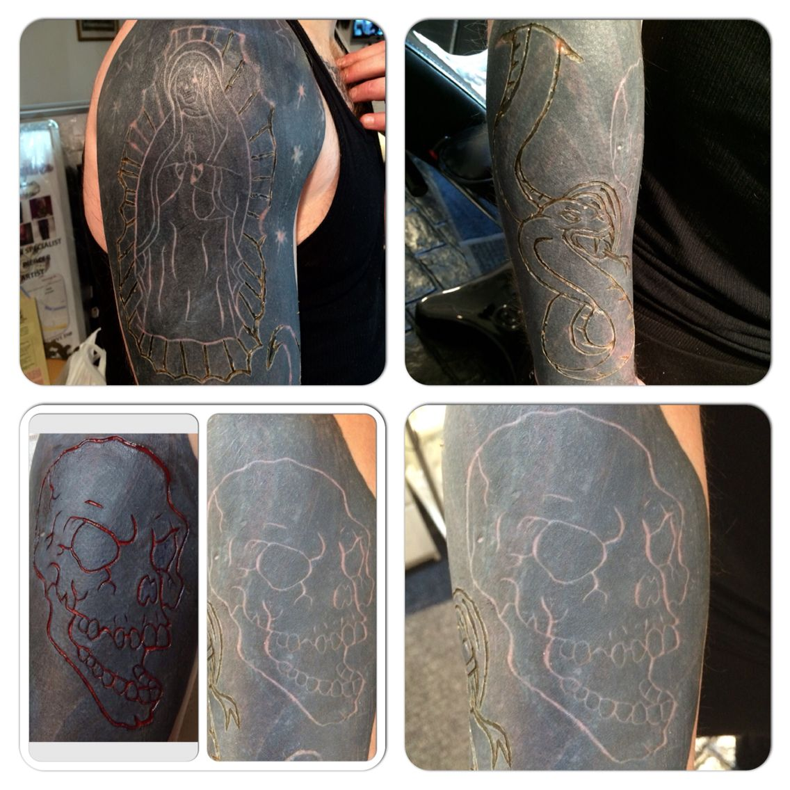 Combination Of Scarification And Branding Over Blackwork Scarification Tattoos Blackwork