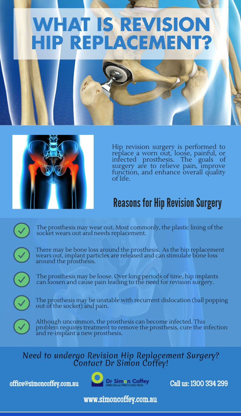 What Is Revision Hip Replacement? #HipReplacement ...