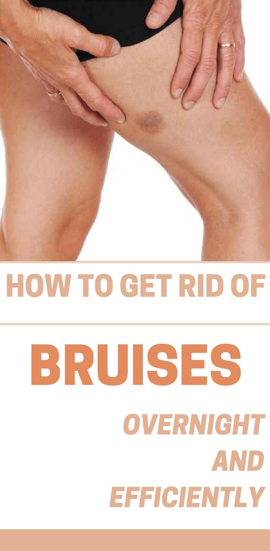 c1a2c77653718b851d0d6615c760ce5a - How To Get Rid Of Bruises On Face Overnight