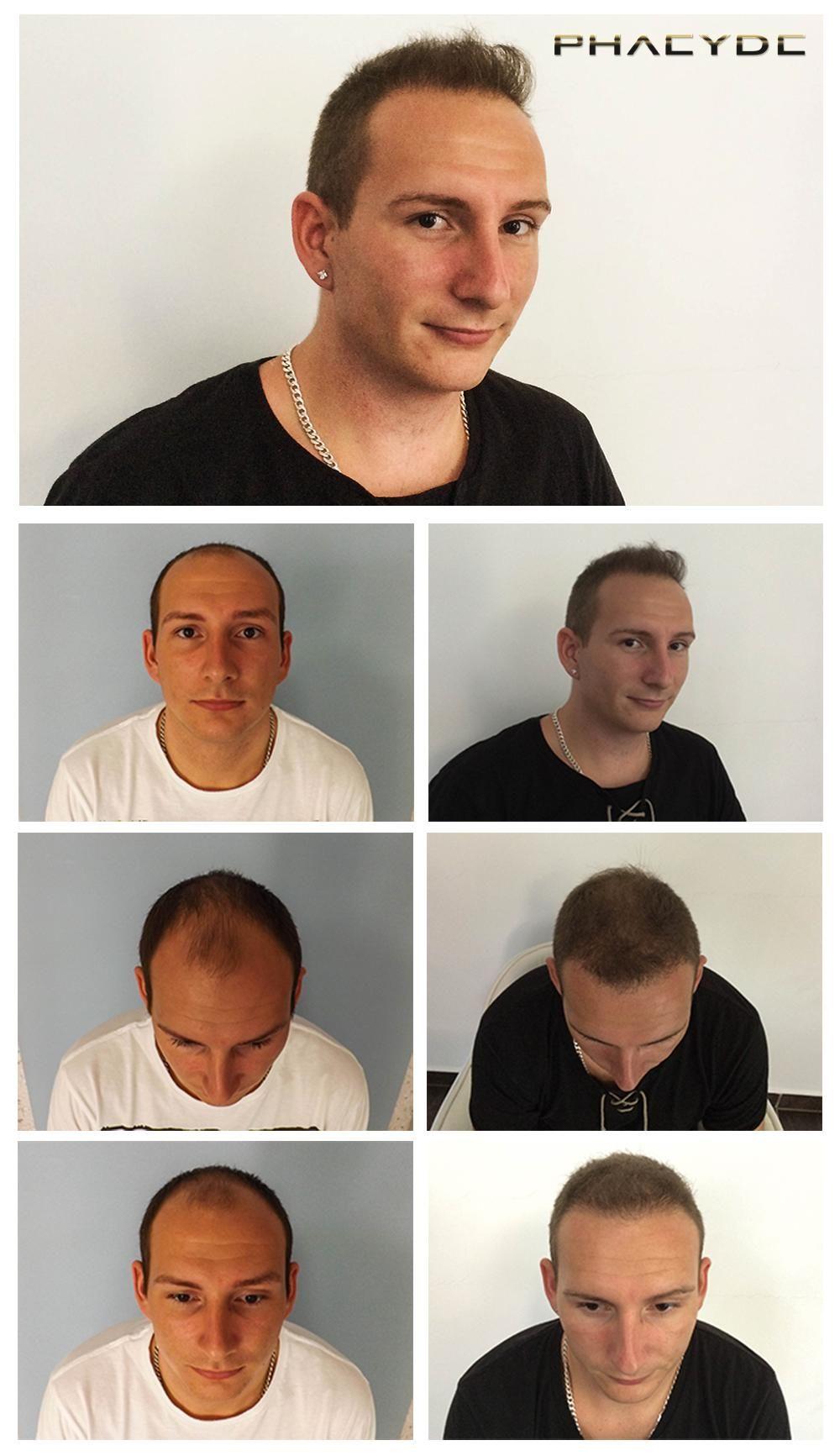 Hiusten implantti tulokset FUE hiusten siirto - PHAEYDE Klinikka  Aadam kaljuuntuva hänen temppeleitä, tai vyöhykkeitä 1,2,3. Hän tarvitsi yli 4000 hiuksia tähän hyvään tulokseen. Voisimme elinsiirron enemmän hänen luovuttajan alue, mutta hän pyysi tätä määrää. Tehnyt PHAEYDE klinikka. http://fi.phaeyde.com/hiusten-siirto