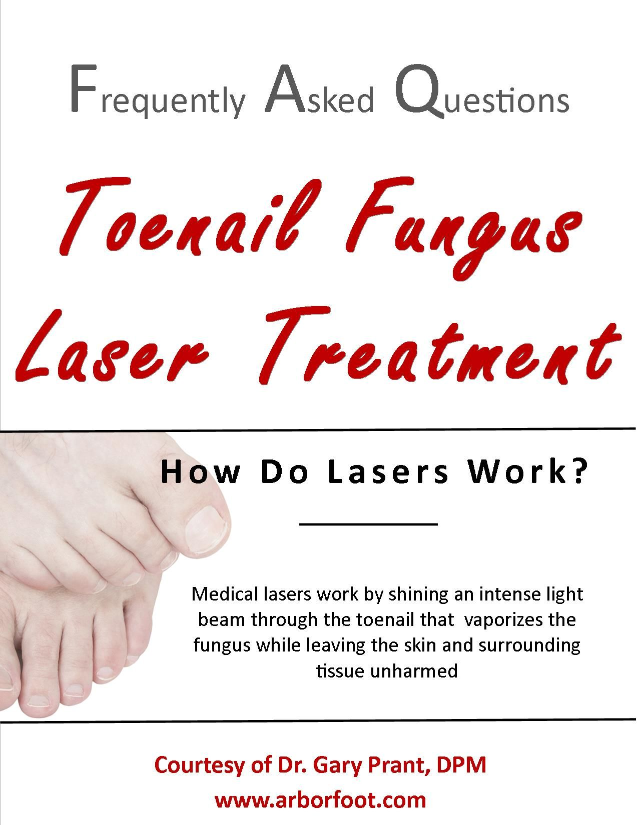 FAQ: How do #lasers work for #toenail #fungus?   No More Ugly Toes ...