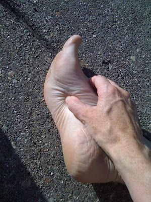Bunions on thumbs