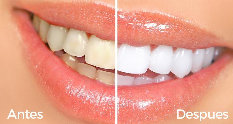 Si buscabas blanquear tus dientes de manera natural, aquí conseguirás los mejores tips y remedios para hacerlo rápidamente paso a paso.
