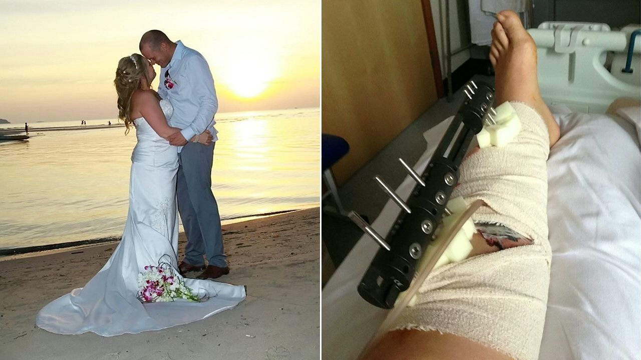Bride Nearly Lost Leg In Firework Coconut Mishap Hours After Dream